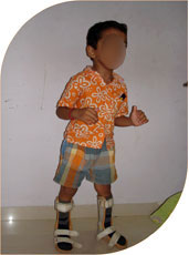 He started stadnign with help of splints and could walk after regular physiotherapy after four months of injection. Though the effect of botulinum toxin lasts for few months the beneficial effects can last for years provided the child is regular in physiotherapy and is wearing prescribed splints regularly