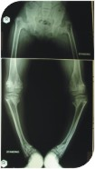 A special x ray done for her legs showed that she had problem in her hip region and the leg bones were curving inside at two levels.
