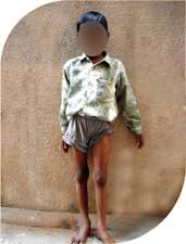 he had complete eradication of infection and he started standing and walking independently